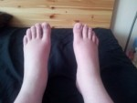 zatekle noge
