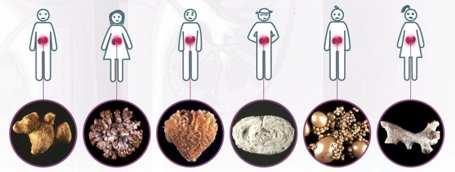 tipi ledvičnih kamnov