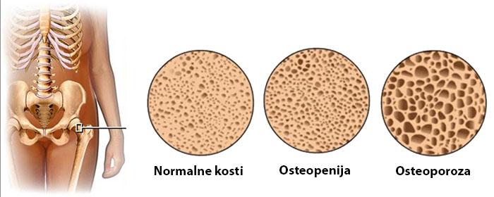 prehranska dopolnila za osteoporozo
