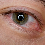 Utrujene oči