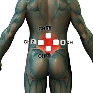 tens elektrode - hrbet