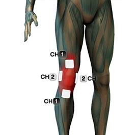tens elektrode - koleno