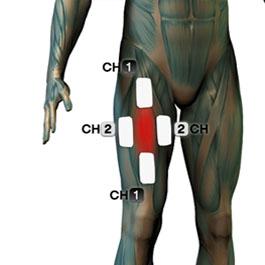 tens elektrode - kvadriceps