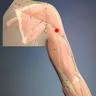 Stičišče rame (TW 13 – Trojni grelec)