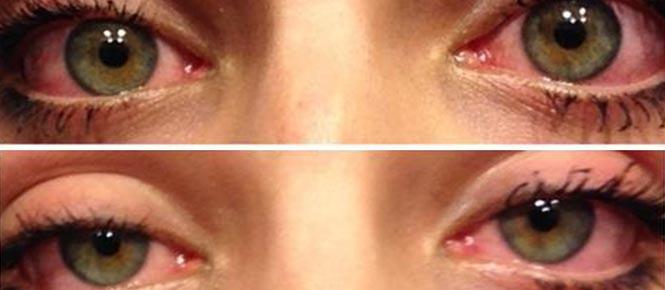 akupresura za utrujene oči