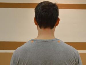 Ramenski vodnjak (GB 21 – Žolčnik) Lokacija: Na najvišji točki ramenske mišice na sredini med zunanjo konico ramena in hrbtenice.