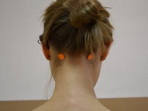 Vrata zavesti (GB 20 – Žolčnik)  Lokacija: Pod zatiljem v udrtini med obema vratnima mišicama, dva do tri palce narazen, odvisno od velikosti glave.