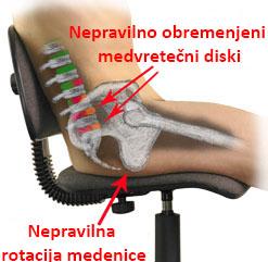 nepravilno obremenjena hrbtenica