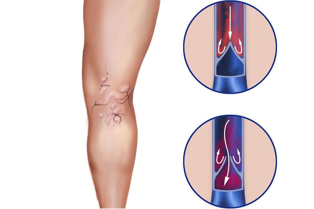 Simptomele si tratamentul varicelor interne (latente)