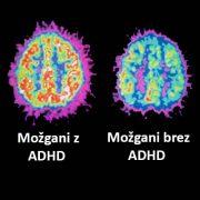 ADHD-možgani